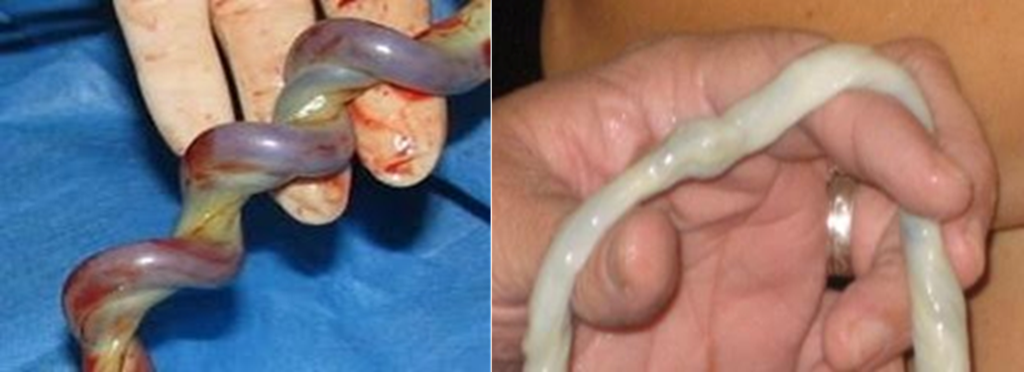 clampé cordon ombilical