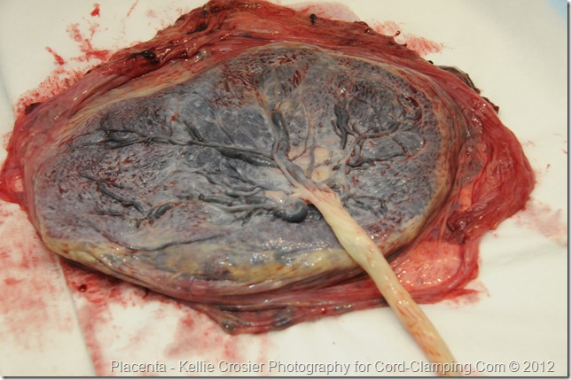 Placenta fetal side